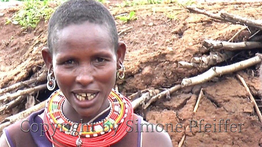Samburu Woman with ritual tooth extraction